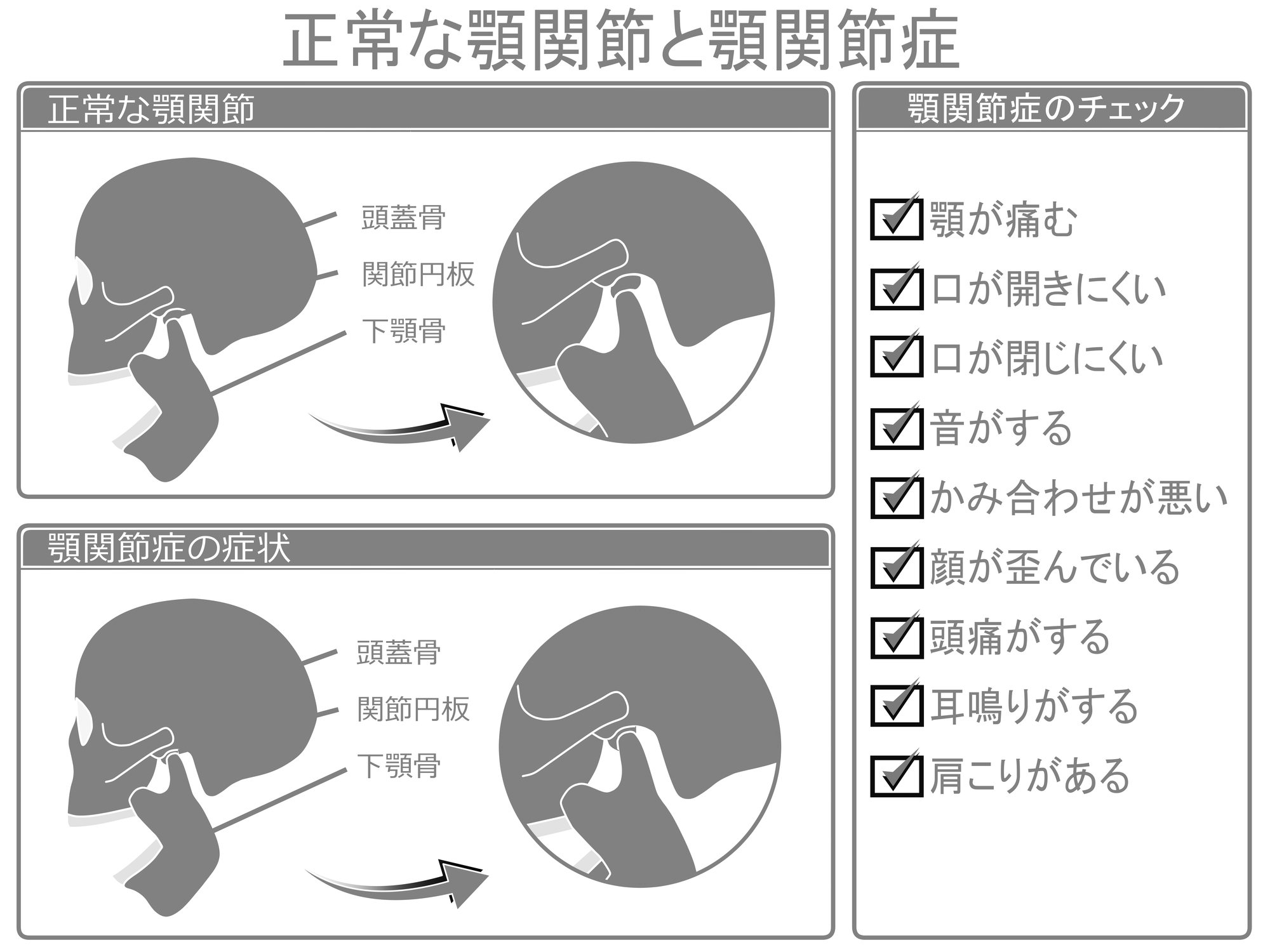 痛 額 症 関節